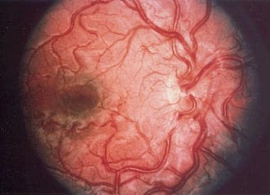 The dilated and abnormal retinal vasculature chara