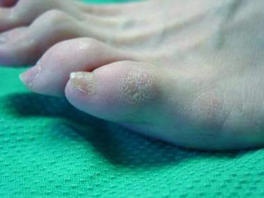 Fifth-toe deformities. Example of hard corn. They