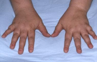 Patient with pseudohypoparathyroidism showing shor