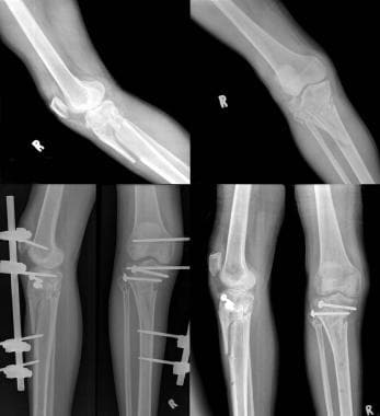Type VI tibial plateau fracture undergoing biologi