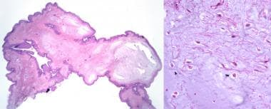 Polypoid neoplasm of fibrillary collagen and unifo