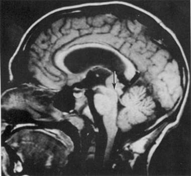 MRI of a 21-year-old man with a germinoma in the p