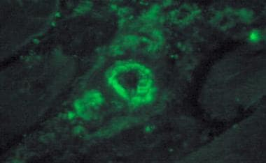 Immunofluorescence for membrane attack complex of