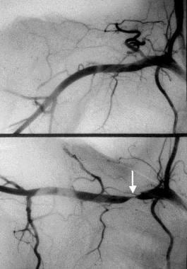 Angiogram of upper extremity. Top is in normal pos