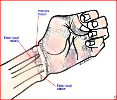 Volar tendons at the wrist. These can be used as l