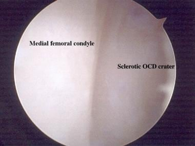 Arthroscopic view of osteochondritis dissecans of
