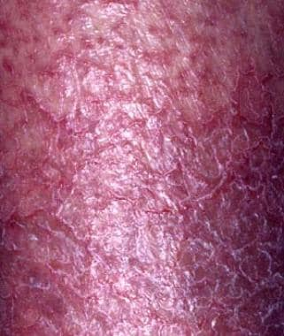 Dry, fissured, pruritic eczema is frequently the r