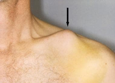 Close-up view of clavicle tenting the skin (arrow)