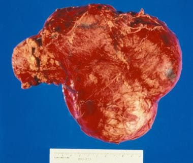 Gross nephrectomy specimen shows a Wilms tumor pus