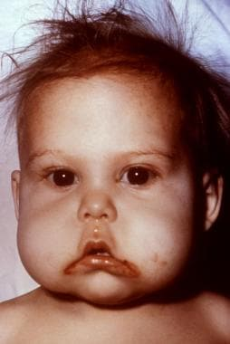 This infant presented with symptoms indicative of