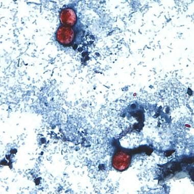 This photomicrograph of a fresh stool sample, whic
