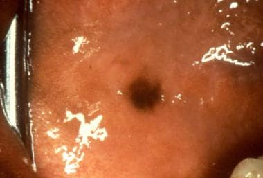Oral Malignant Melanoma: Overview, Etiology and