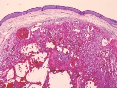 Biopsy of a nodule on the scalp revealed a precoci