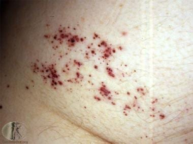 Angioma serpiginosum. Courtesy of DermNet New Zeal