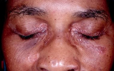 Periocular papules and plaques.