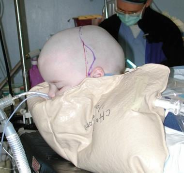 Craniosynostosis management. Position of a child w