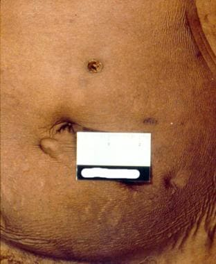 Trochar hole in an embalmed decedent (button remov