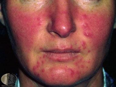 Severe erythema, papules, and pustules. Courtesy o