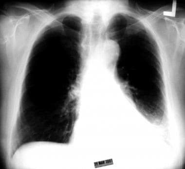 Chest radiograph showing collapse of the left lowe