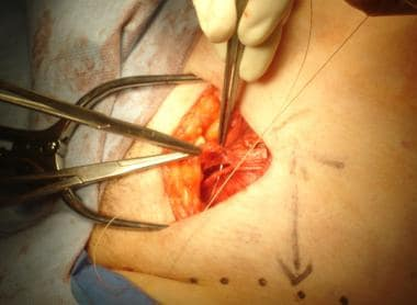 Open inguinal hernia repair. Closure of external o