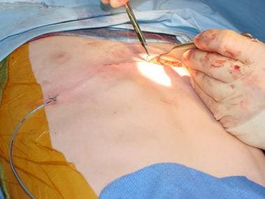 Closure of the anterior chest wall incision used f