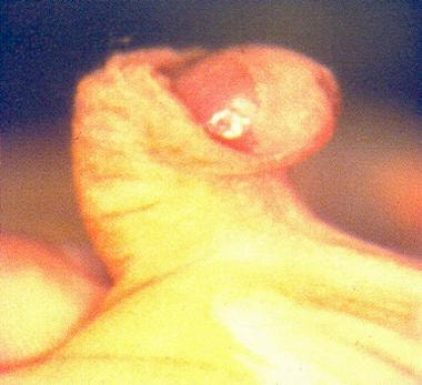 Severe penile chordee. Note extreme ventral curvat