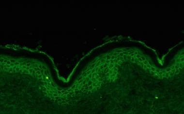 Direct immunofluorescence showing intercellular im