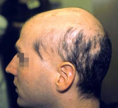 Sisaipho pattern of alopecia areata.