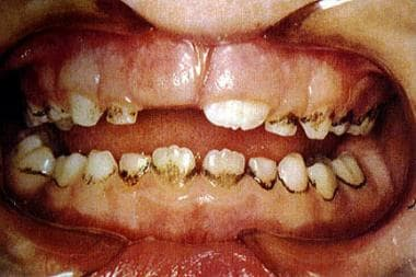 Extrinsic dental staining caused by long-term topi