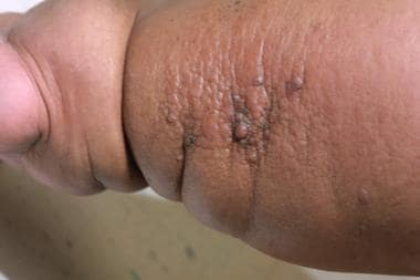 Morbidly obese patient with lymphedema.