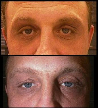Xanthelasma. Top image, 4 weeks after surgery; low