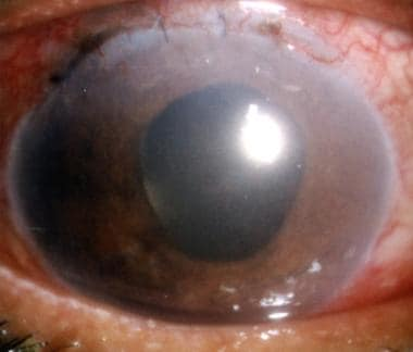 Pseudophakic pupillary block precipitated by leaka