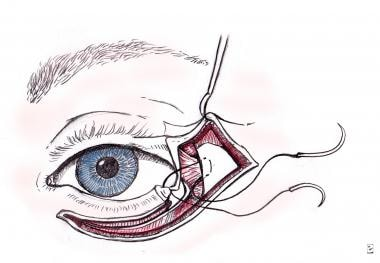 Fagien's lateral canthoplasty.