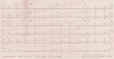ECG demonstrating a short PR interval of approxima