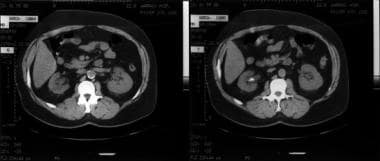Follow-up CT scan of patient in the image above (i