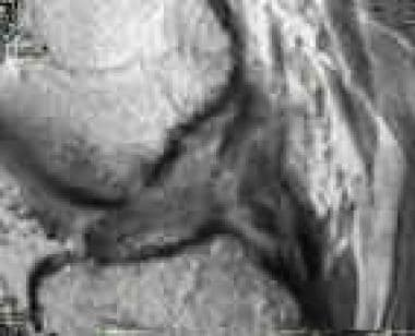 MRI displaying a ruptured anterior cruciate ligame