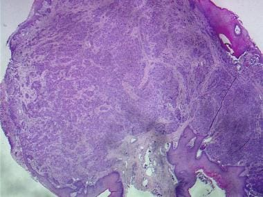 Histologic image of a polypoid mass. Rounded colle