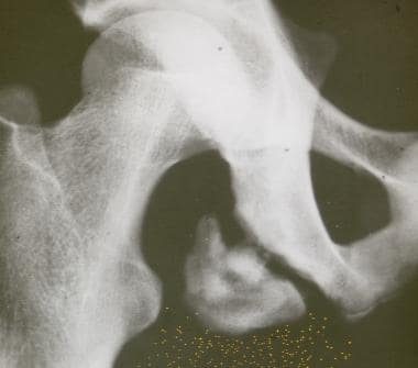 Pelvic apophyseal avulsion fracture of the ischial
