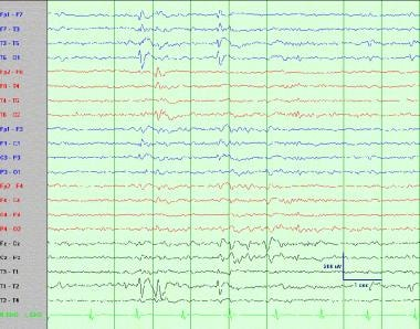 Interictal left temporal sharp wave (left temporal