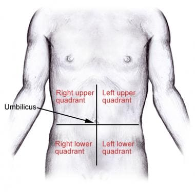 Division Of The Abdomen Into 4 Quadrants