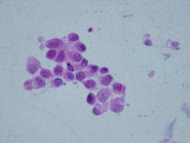 Cluster of tumor cells from an atypical teratoid/r
