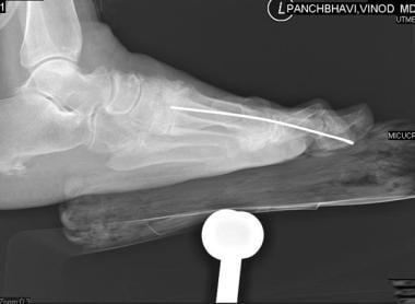 Hallux Valgus Osteotomy Technique: Approach Considerations, Chevron
