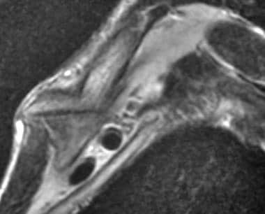 Clavicular fracture in a 57-year-old man with a tr