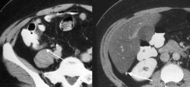 Retrocecal appendix; computed tomography scan. Lef