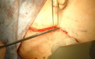 Open inguinal hernia repair. Skin closure.