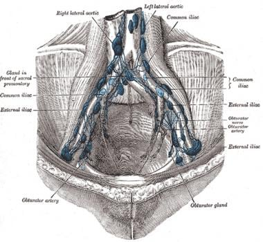 The parietal lymph glands of the pelvis.