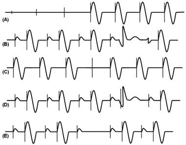 (A) Ventricular pacing during asystole. There is i