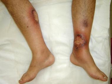 Pyoderma gangrenosum in a patient with hidradeniti