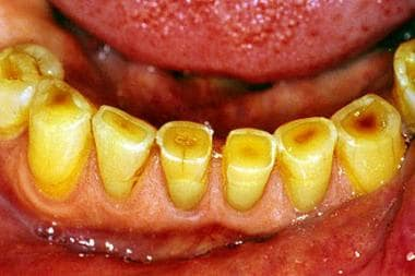 Image demonstrates dental attrition in a 75-year-o