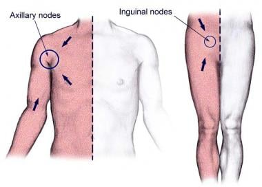 The body quadrants of superficial lymph drainage.